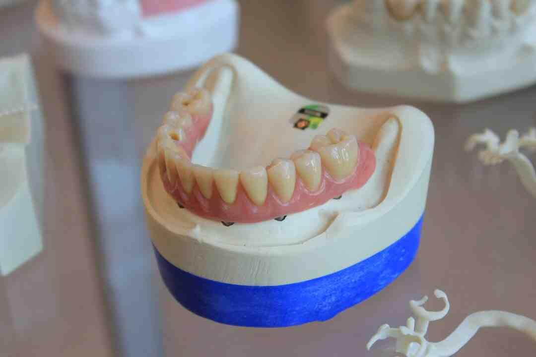 Comment devenir Prothésiste dentaire : Formation, Métier, salaire,